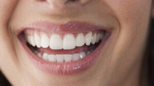 تاثر و اثر دارچین بر بهداشت دهان و دندان